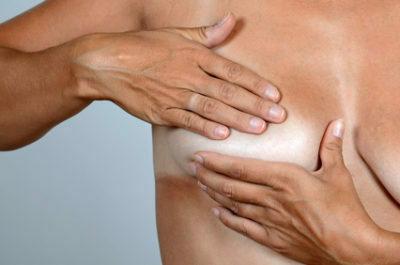 Breast Lump In Women