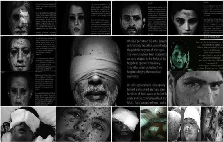 IndiaCantSee' Campaign On Pellet Havoc In Kashmir Creates Internet Sensation