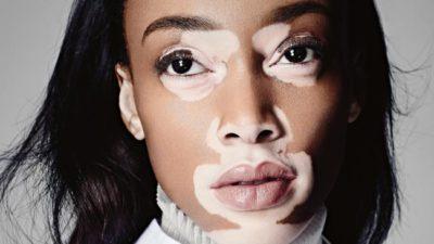 Vitiligo (White Patches On Skin)