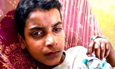 Sordid Saga Of Pellet Victim: 'I Try To Study, But My Eyes Pains A Lot'