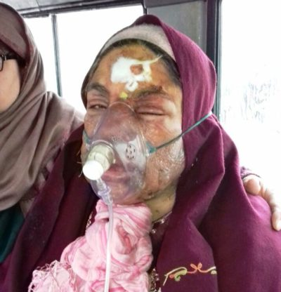 Burning Daughter-in-Law: Shamshada Was Screaming From Lungs In Pain